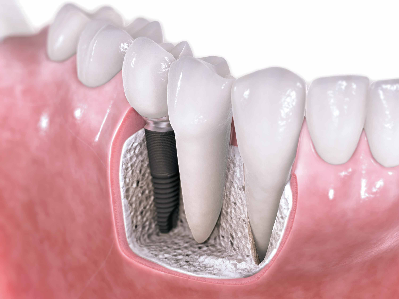 Mitos y Realidades De Los Implantes Dentales