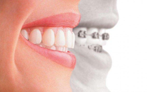 Higiene Oral Durante El Tratamiento De Ortodoncia