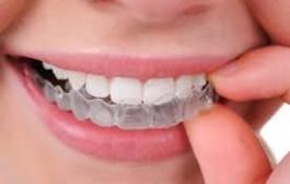 Una empresa argentina desarrolló una ortodoncia con tecnología 3D