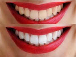 imagen comparativa de blanqueado dental