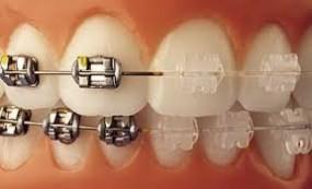 imagenes de brackets de ortodoncia