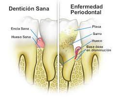 imagen de encia con periodontitis
