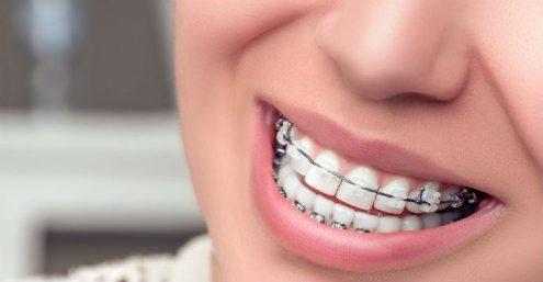 ¿Qué tipo de Ortodoncia Elijo?